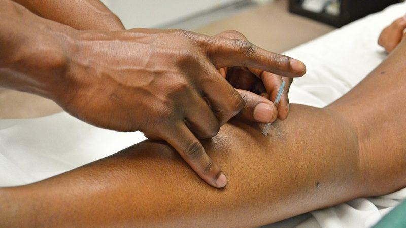 L'acupuncture, une méthode aux multiples bienfaits